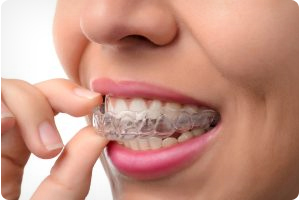 invisalign aligners by midwest city orthodontists